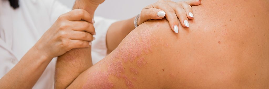 Mand autoimmune sygdomme bliver tilset af fagperson